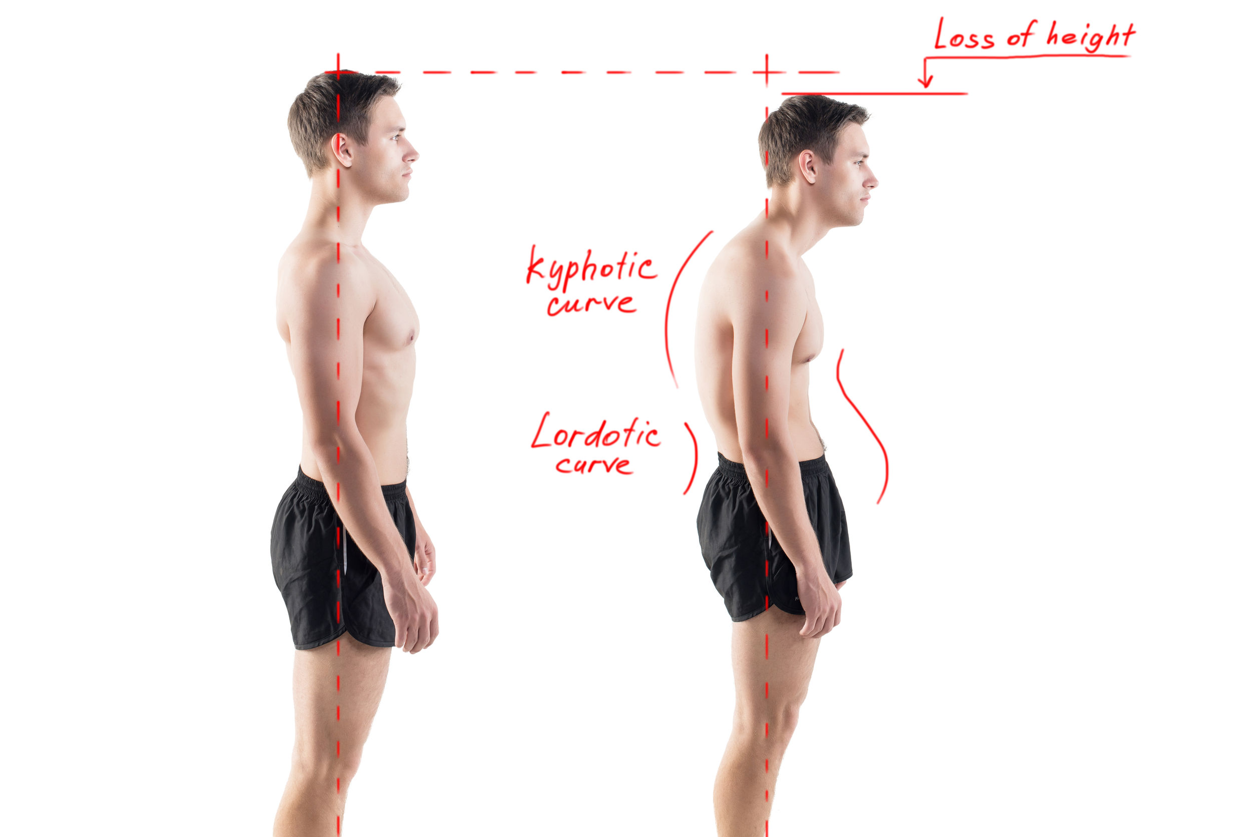 https://navina.ca/wp-content/uploads/2015/12/good-posture-importance-physiotherapy-north-perth-leederville.jpg